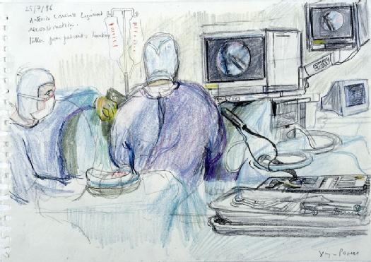 A surgical operation to reconstruct a patient's anterior cruciate ligament. Drawing by Virginia Powell, 1996. Wellcome Images