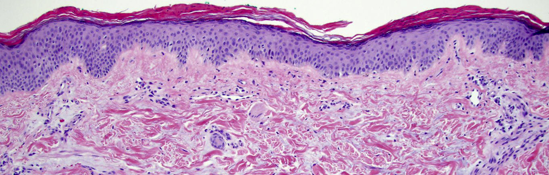 Dermatology Update