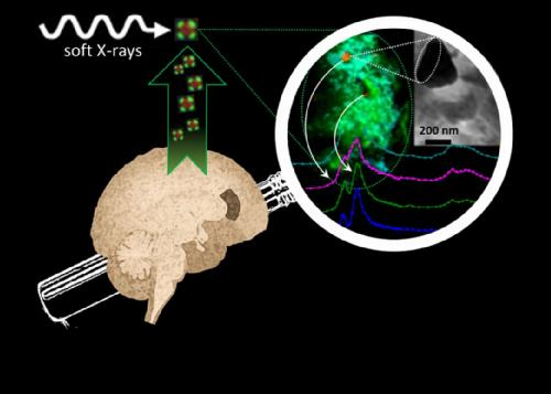 Nanoscale synchrotron X-ray reveals iron and calcium compounds in amyloid plaque cores from Alzheimer
