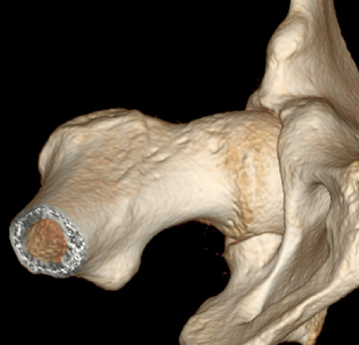 CT scan of right hip that shows the egg shaped ball
