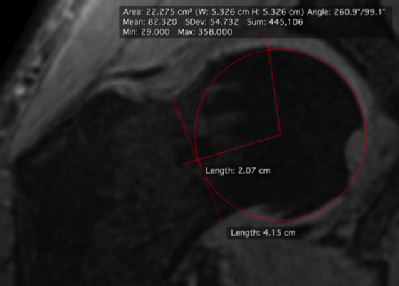 MRI scan indicating difference in angle of hip joint