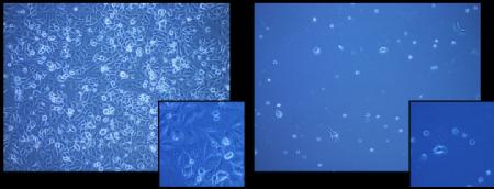 The cells frozen with the polymer (left) and without the polymer (right)